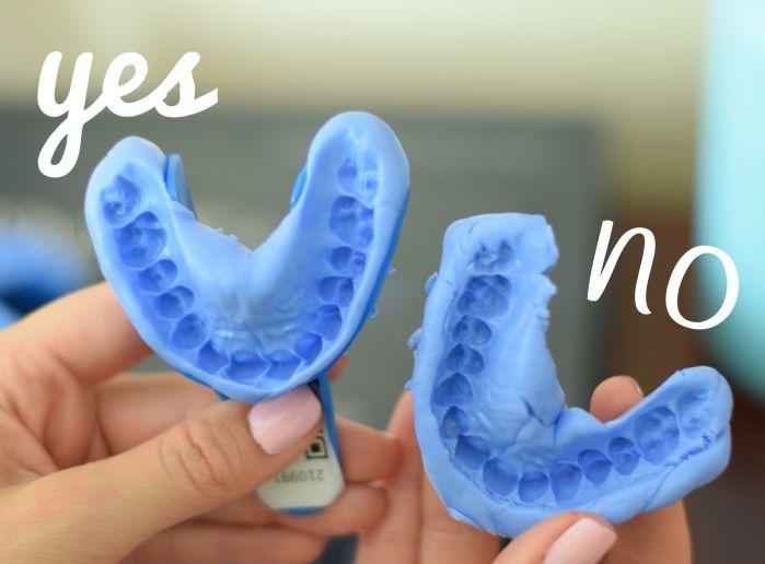 học nghề răng tháo lắp