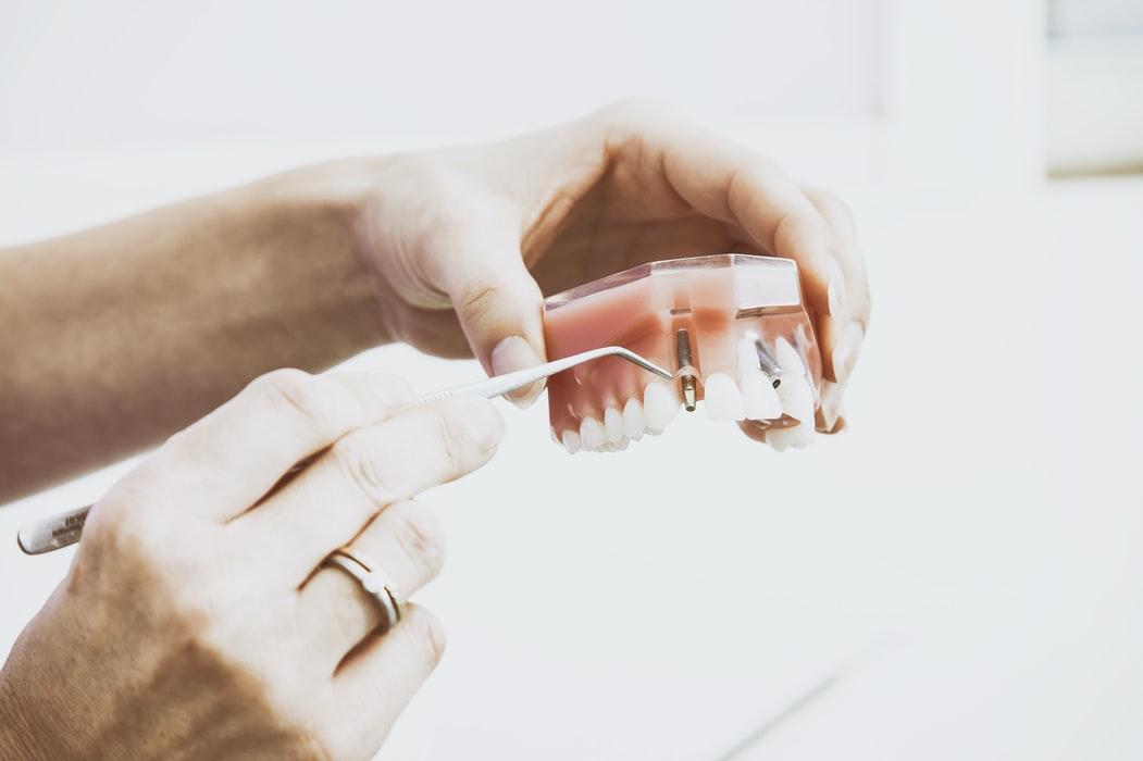 học kỹ thuật phục hình răng