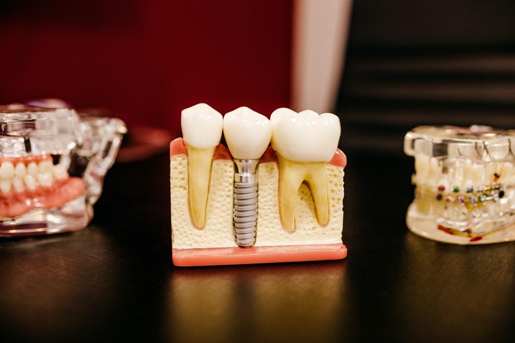 học nghề phục hình răng