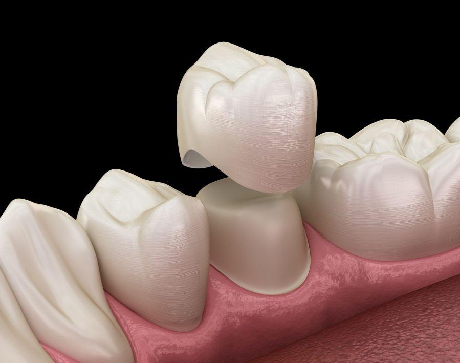 phục hình răng sứ trên implant