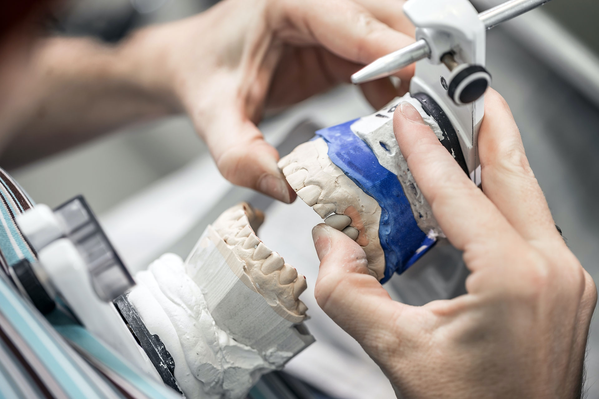 kỹ thuật phục hình răng ra làm gì